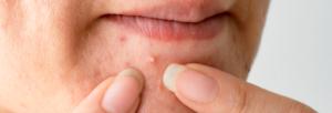 alimentacao-e-outros-cuidados-auxiliam-no-tratamento-da-acne-blog-nutrify